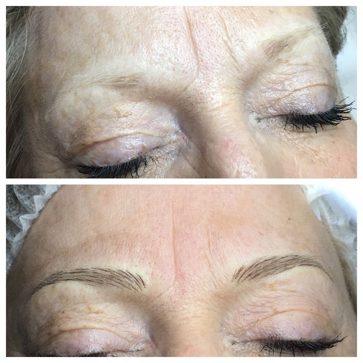 Although this lovely lady is blonde we did go a little darker with colour, I tend to do this depending on which shade of brow pencil is used daily to try and replace what pencil would normally do for you 💕