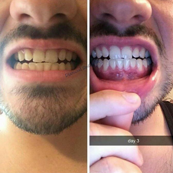Customer on Day 3 of his Smile Enhance 7 day detox. Incredible! #perfectsmile #teeth #perfectteeth #whiteteeth #smile #smileenhance #smileenhanceaustralia #cleanteeth #teethcleaning #teethdetox #7dayteethdetox #7daydetox by smile.enhance.australia Our Teeth Cleaning Page: http://www.myimagedental.com/services/preventive-dentistry/exams-and-cleaning/ Other Preventive Dentistry services we offer: http://www.myimagedental.com/services/preventive-dentistry/ Google My Business…