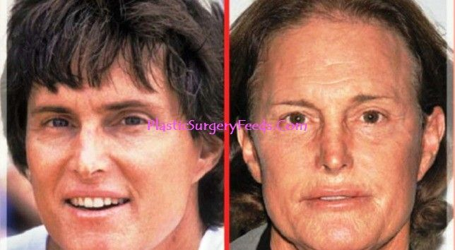 Bruce Jenner Plastic Surgery Before and After, adam's apple surgery, rhinoplasty and nose surgery.