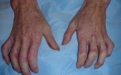 Síndrome de CREST – O que é, Causas, Sintomas e Tratamentos