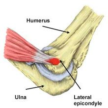 Symptoms and treatment of Tennis Elbow. #orthopaedic #orthopaedicdoctors For more info visit:https://www.parashospitals.com/paras-hospitals-gurgaon/centres-of-excellence/orthopaedics-joints/