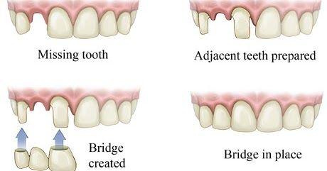 What Happens in Dental Bridges Treatment in Richmond? #DentalBridgesRichmond