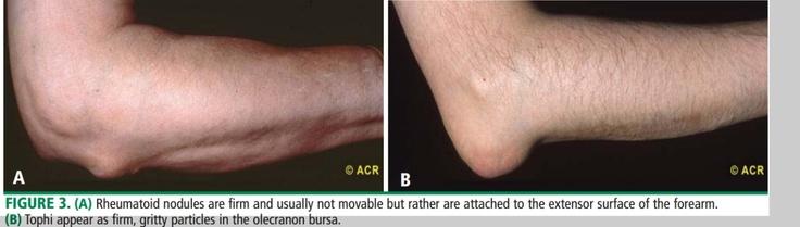 rheumatoid nodules vs. tophi of gout