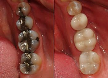 Left: Silver fillings Right: Tooth colored fillings