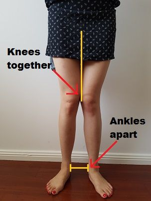 Knocked knees? No thigh gap? You have Knee Valgus! But... We can fix it! Here is a list of the exact exercises you should do to tackle your knee valgus.
