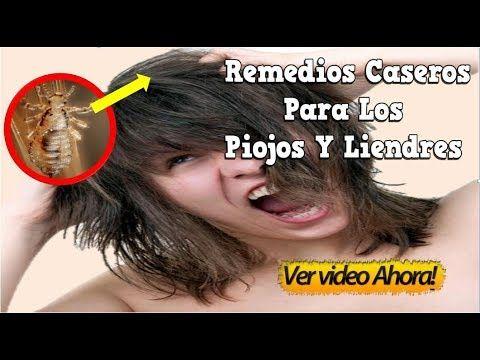 Remedios Caseros Para Los Piojos Y Liendres, Piojos En La Cabeza, Remedios Caseros Para Los Piojos - YouTube
