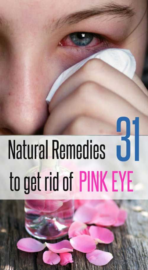 Since pink eye can be contagious, early diagnosis and treatment helps minimize spreading. Try out these home remedies to get rid of pink eyes fast.