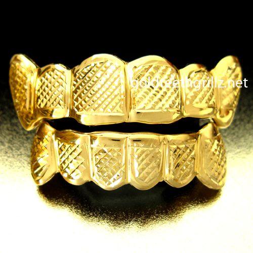 golden grilled teeth | Gold Teeth Photo - Real Gold Teeth Gallery - Gold Teeth 64.jpg