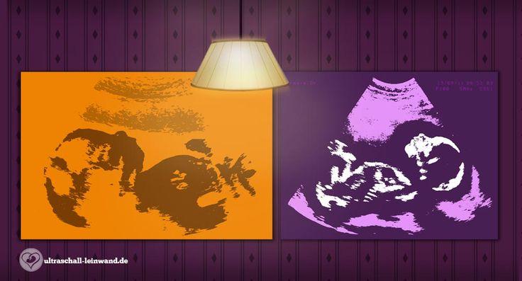 Ultraschallbilder in tollen Farben auf Leinwand ... zum Bestellen ... kann man aber auch selber machen ;-)