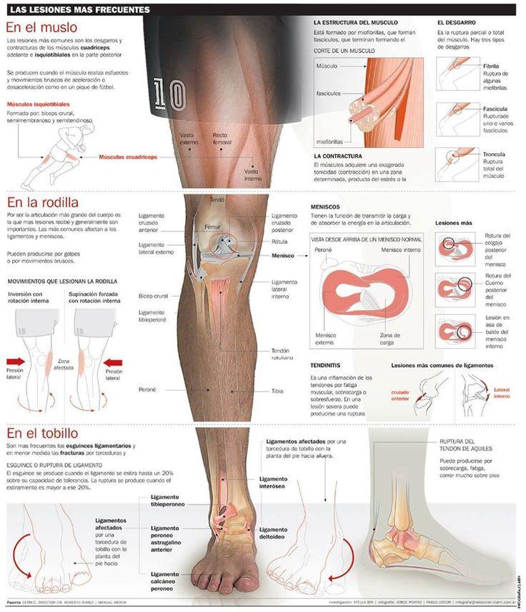 Las #lesiones más frecuentes del miembro inferior #fisioterapia   www.logarsalud.com