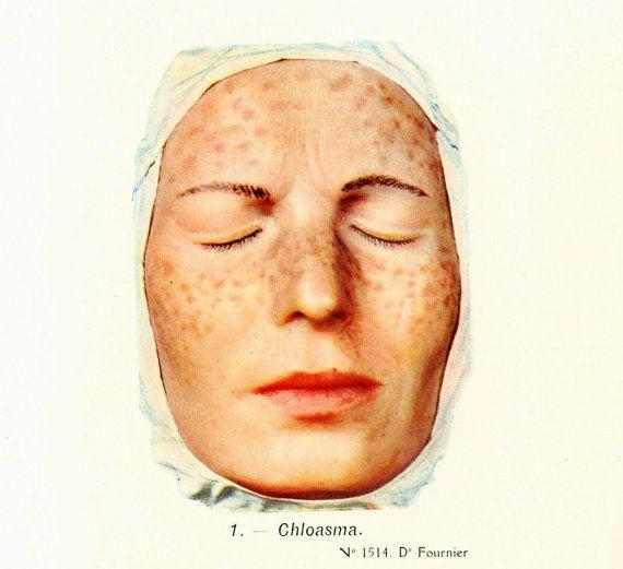1912 Maladie de Peau Cheloïde Chloasma par sofrenchvintage sur Etsy