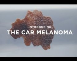 Cancer Association of South Africa: Car Melanoma