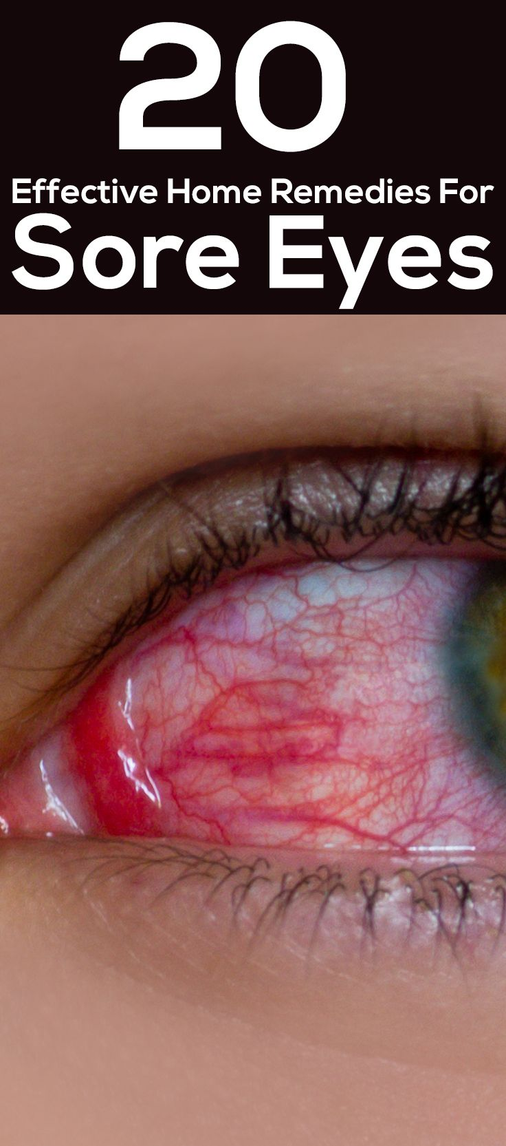 20 Effective Home Remedies For Sore Eyes