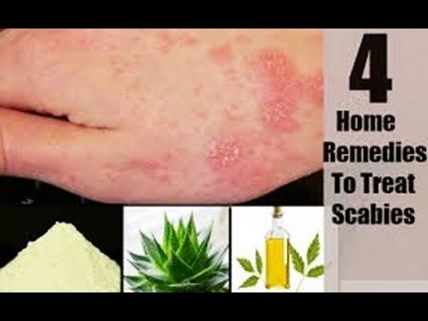 How To Cure Scabies Naturally-Home Remedies for Scabies How To Cure Scabies Naturally- Home Remedies for Scabies  Scabies is an extremely overpowering contamination brought on by a kind of bug that covers up in the human skin. The condition causes aggravated unbearable and red rashes wherever all through the body and can spread rapidly through skin-to-skin contact. In this way it is critical to control the sickness when it shows up on the surface of the skin.  How To Cure Scabies…
