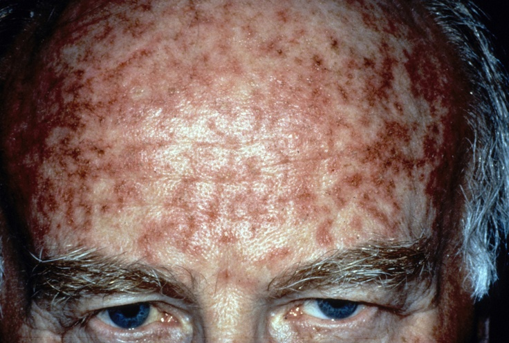 Natural Topical Treatment For Skin Cancer