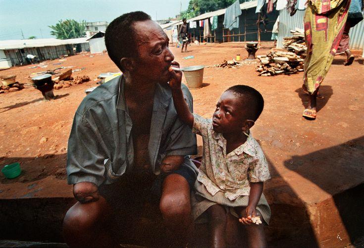 Un centro per  persone mutilate dai miliziani durante la guerra civile, Freetown, Sierra Leone, il 3 novembre 1999. - (Michel du Cille, The Washington Post/Getty Images)
