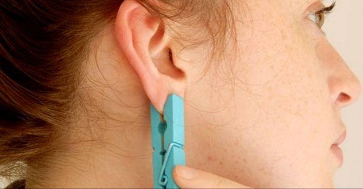 Stláčala si každý deň ucho so štipcom. Pozrite sa prečo | Chillin.sk