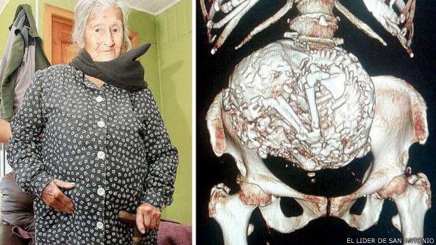 ¡Increíble! ¡Ha Vivido Más De 60 Años Hospedando Alguien En Su Abdomen! - #¡WOW!  http://www.vivavive.com/anciana-vive-feto-momificado-abdomen/
