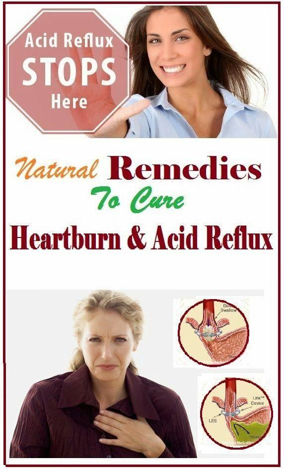 Natural Remedies For Heartburn Nhs