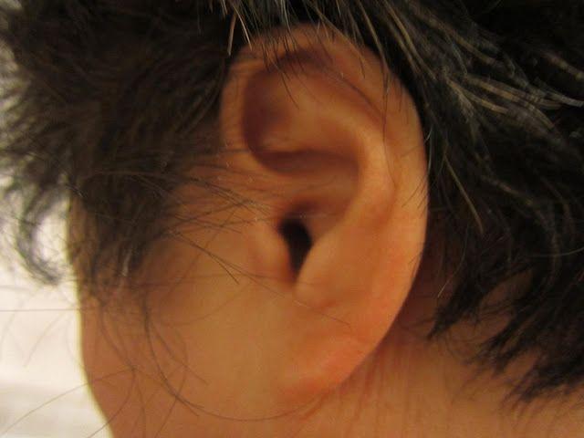 #opiekunmedyczny #zdrowie #słuch Zaburzenia słuchu
