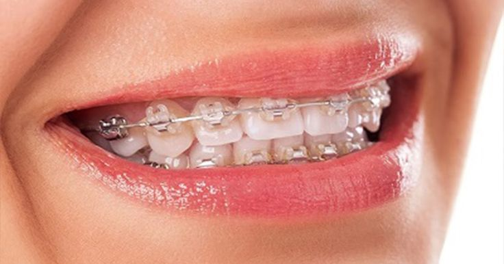 http://alldentalsolutionsmelbourne.blogspot.com.au/2016/10/look-for-a-certified-orthodontist-melbourne.html