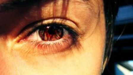 Optic Neuritis– Causes, Symptoms, Diagnosis, Treatment and Ongoing care - Inflammation of the optic nerve ; Most common form is acute demyelinating optic neuritis (ON), but other causes include infectious disease and systemic autoimmune disorders