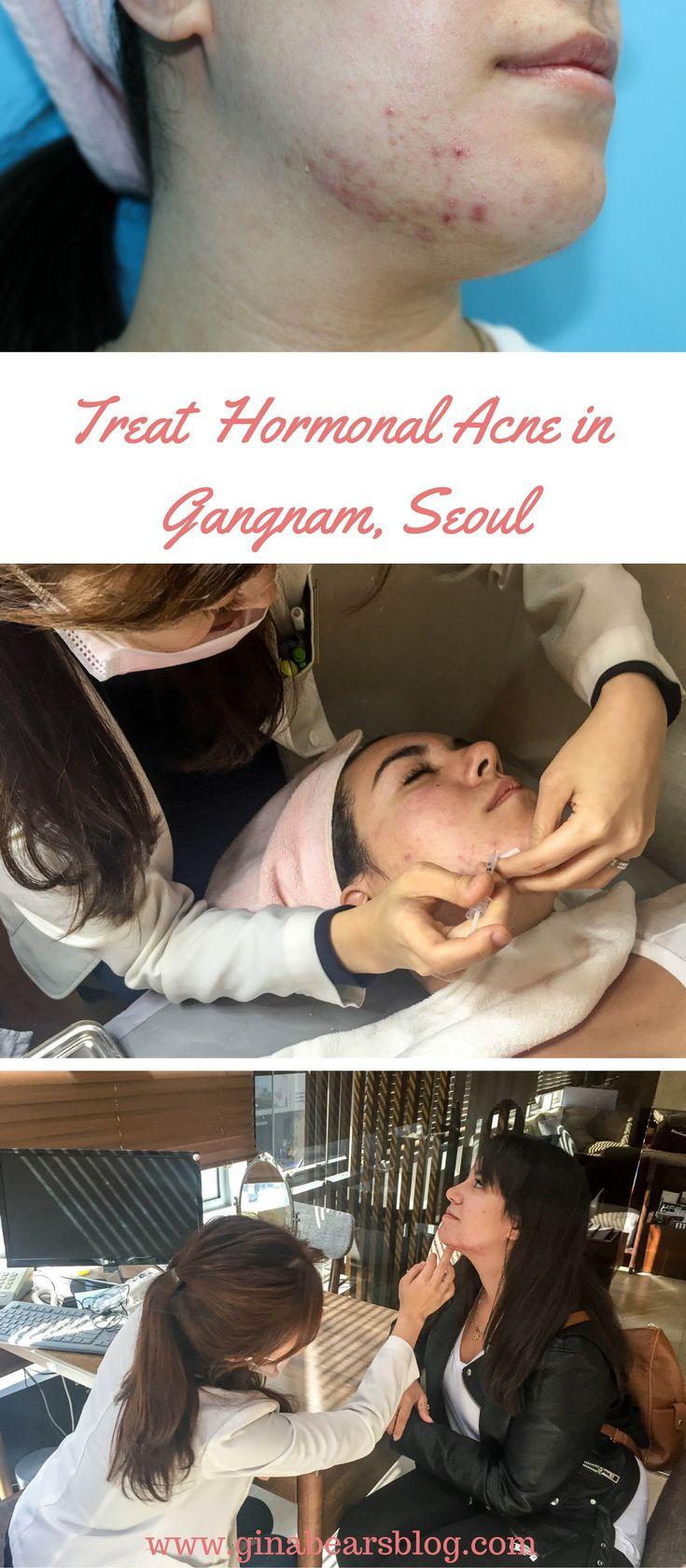 Jessner Peel and Pimple Extraction with Eunogo http://ginabearsblog.com/2017/10/jessner-peel-pimple-extraction-eunogo/