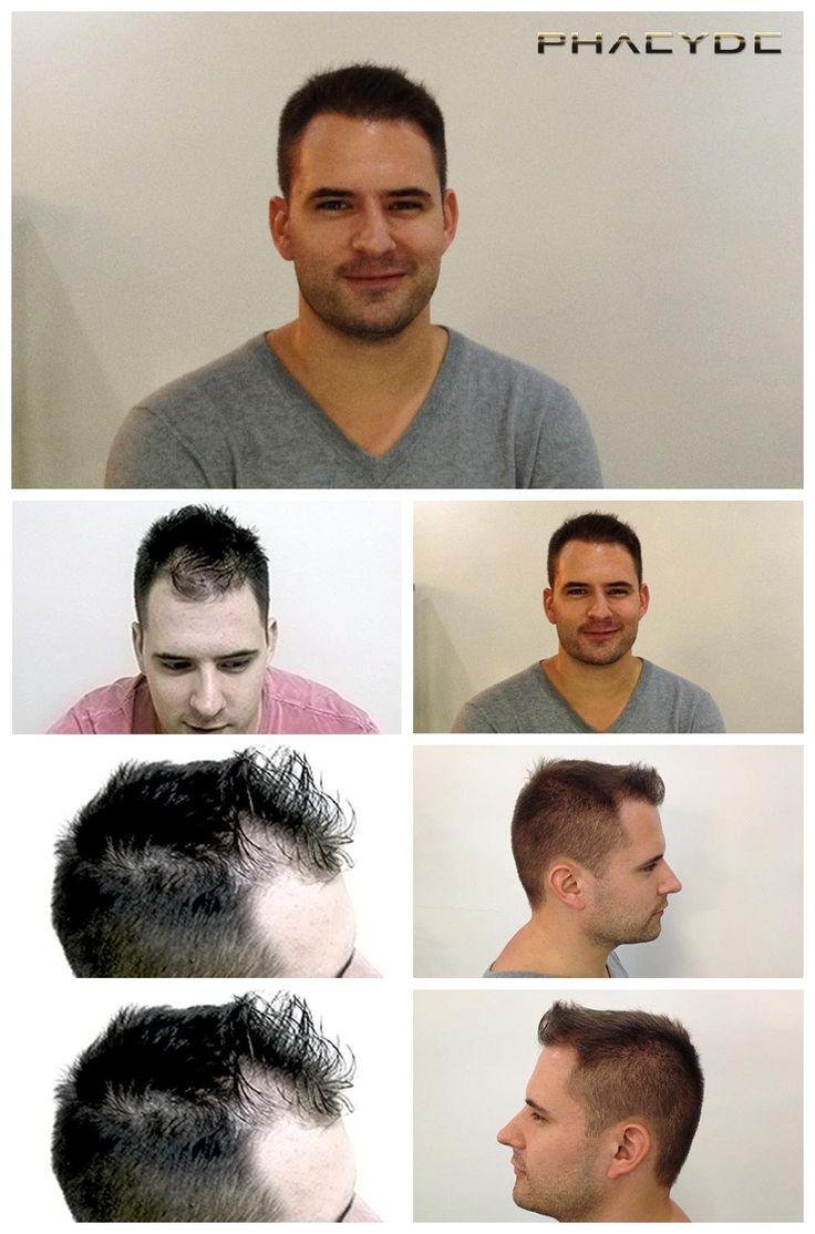 """Andras var halvskaldet i zone 1 og 2. På billedet kan du se resultatet af 2700 + hår implantater, som blev foretaget i PHAEYDE Clinic. Efter foto taget 1 år efter hår restaurering. <a href=""""http://dk.phaeyde.com/har-implantation"""" rel=""""nofollow"""">dk.phaeyde.com/har-implantation</a>"""