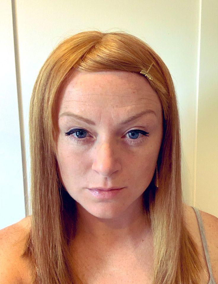 Laura | Hair loss women Hair system Hair loss specialist