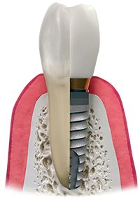 Do You have any Missing tooth ???  Dental Implants are the best for tooth replacement,that act just like natural tooth roots.
