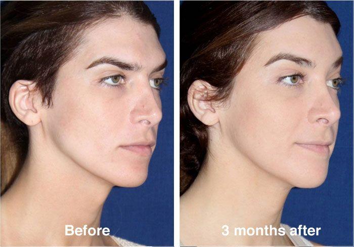 Full-facial-feminization-surgery-chin reduction surgery