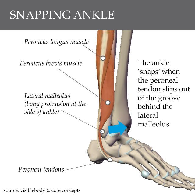 Step By Step Finding Indispensable Issues For Strength Training: 11 Best Owwww! Ankle Tendon Problems Are Not Fun! Images