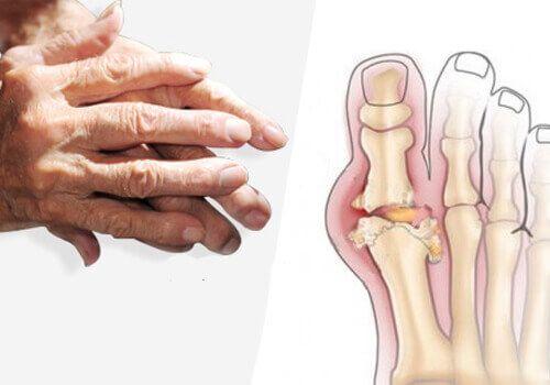 Jak leczyć artretyzm? kilka wskazówek