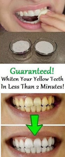 How To Whiten Teeth Naturally At Home Remedies Pinterest