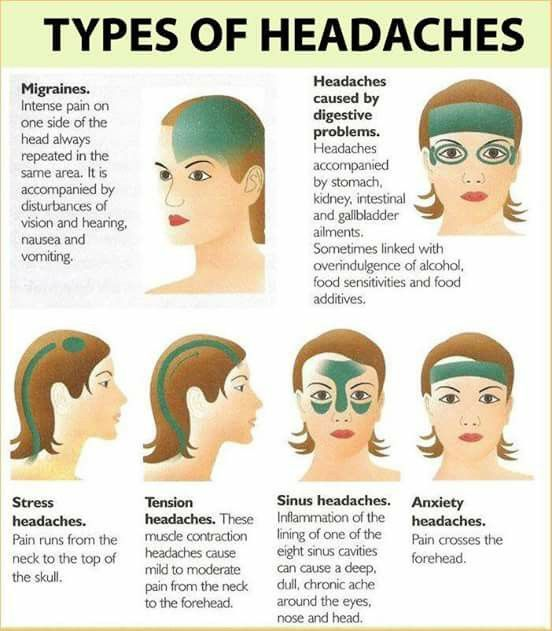 There are numerous different types of headaches that can occur from stress to tension.