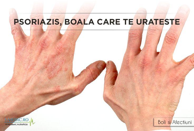 Micoze dezvoltate pe maini