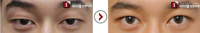 plastic surgery - eye surgery - double eyelid - male surgery Recently, the number of male patients who underwent double eyelid surgery has significantly increased. In contrast to female patients, most of male patients want to have natural-looking , in-line double eyelids with non incisional method. It can be easily created by ITEM Clinic.  #Item#plasticsurgery#cosmeticsurgery#beauty#eyes#eyesurgery#doubleeyelid#doubleeyelidsurgery#malesurgery