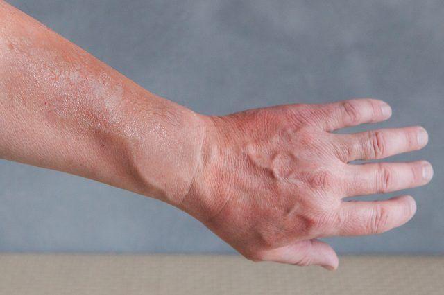 Oatmeal Paste for Sunburned Skin | LIVESTRONG.COM
