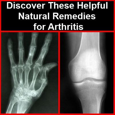 Discover These Helpful Natural Remedies for Arthritis