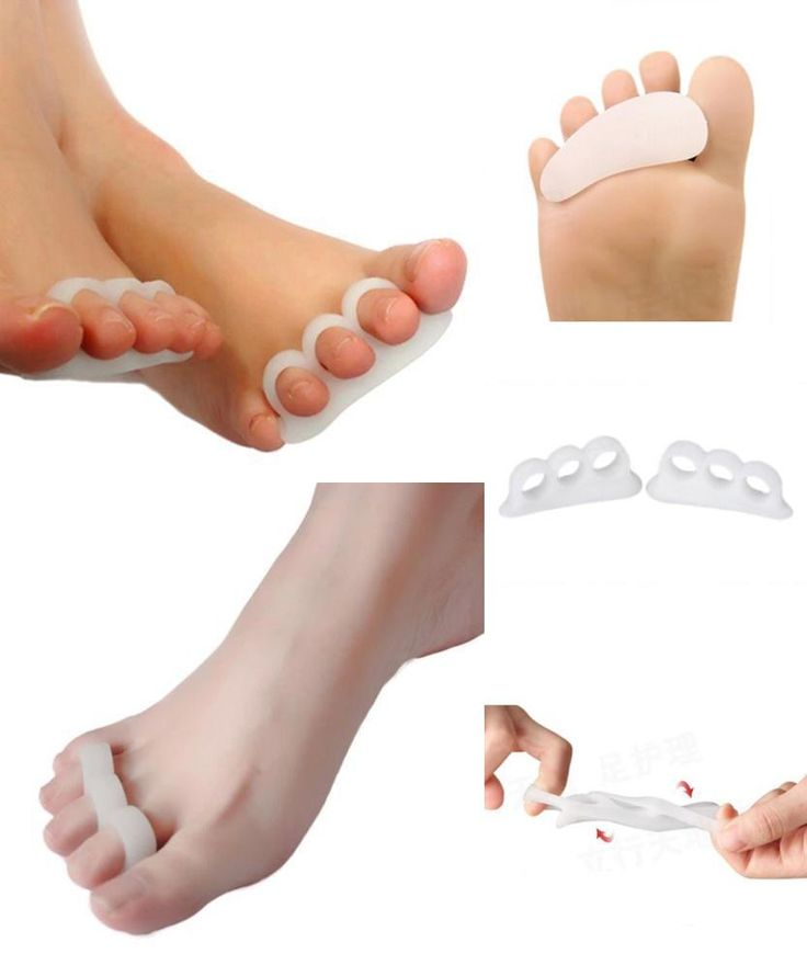 [Visit to Buy] Gel Toe Separators Stretchers Alignment Overlapping Toes Orthotics & Hammer Toes Orthopedic Cushion Feet Care Shoes Insoles #Advertisement