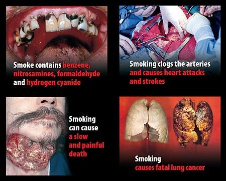 Enfermedades causadas por fumar