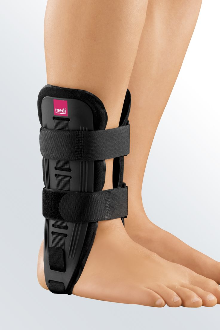 1000+ images about over pronation on Pinterest | Back pain ... Ankle Pronation Surgery