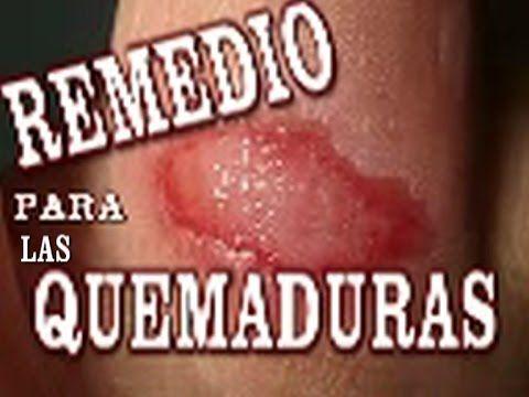Remedio Natural para quemaduras simples...por: Lola Temprado