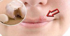 Des remèdes maison pour soulager rapidement l'herpès labial - Améliore ta Santé