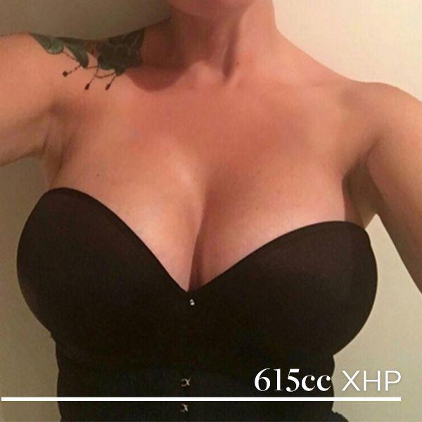 Books on breast implants