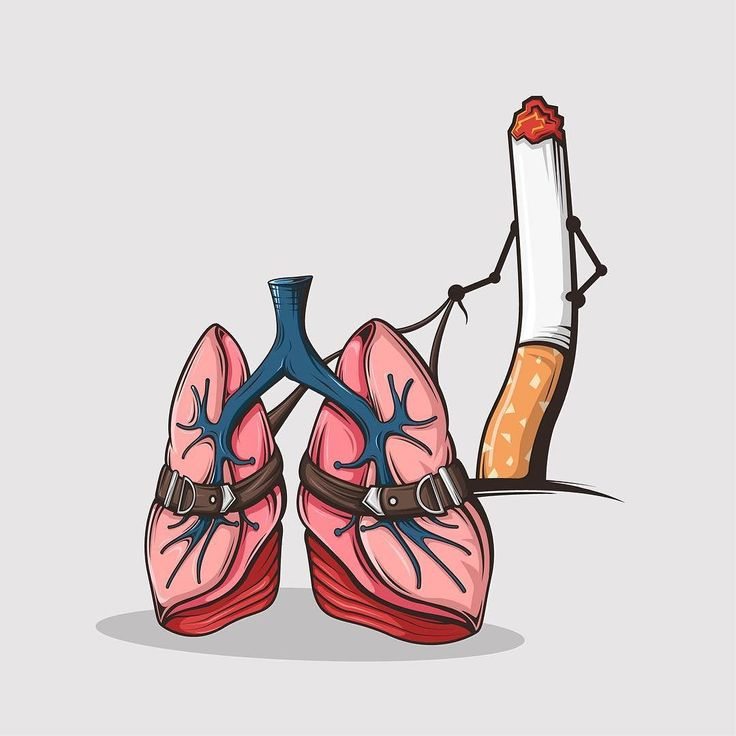 Day 239. Part two of my #obsession #illustration . I belive a lot of you know the Problem #smoke #cigarette #smoking #lungs #vector #illustration #breathe #vectorart by m.a.s_design
