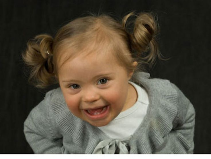 A Special Joy 3: Babies With Down Syndrome - Parenting.com