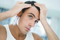 Haarausfall: Ursachen und Behandlung #PsoEasy Kosmetik gegen #Schuppenflechte