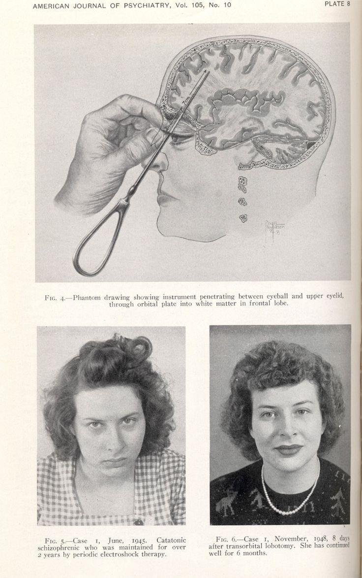 """In alto: istruzioni per l'esecuzione di una lobotomia transorbitale.  Nelle foto sotto, a sinistra la didascalia recita """"Caso 1, Giugno 1945. Schizofrenica catatonica mantenuta per due anni sotto periodica terapia elettroconvulsiva"""".  A destra, invece, """"Caso 1, Novembre del 1948, 8 giorni dopo una lobotomia transorbitale. Ha continuato a stare bene per 6 mesi"""".  Tratto da Oltman et al. """"Frontal Lobotomy Clinical Experience with 107 Cases in a State Hospital"""". American Psychiatric Journal…"""