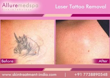 Laser tattoo removal is actually way more complicated than you might think.Laser tattoo removal is actually way to remove body tattoos with the laser techniques.